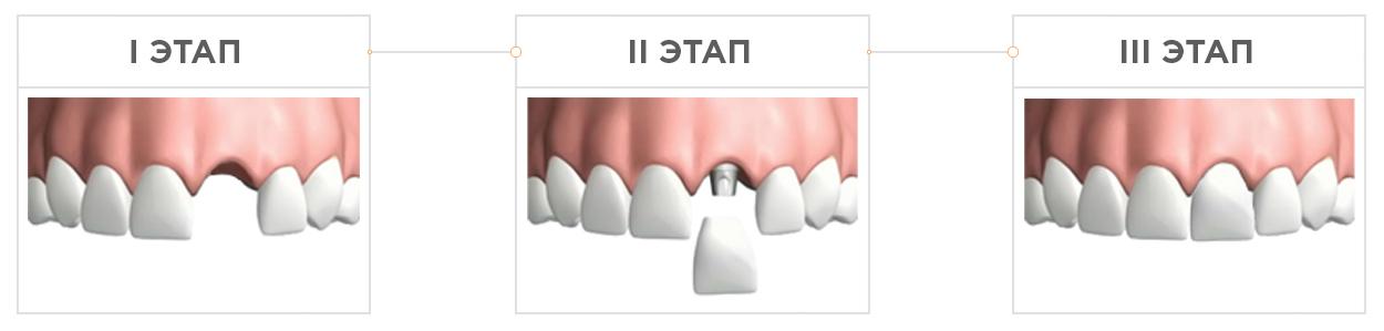 aprel_infografika_implantatsia3