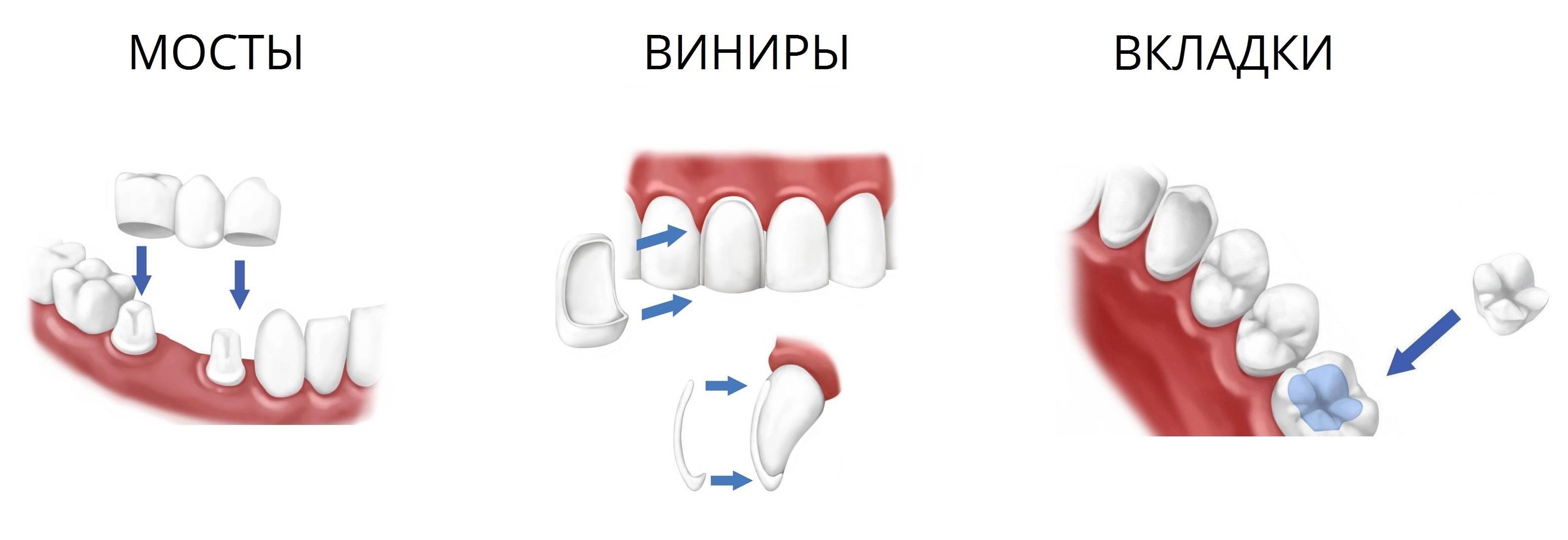 coroane-dentar1e