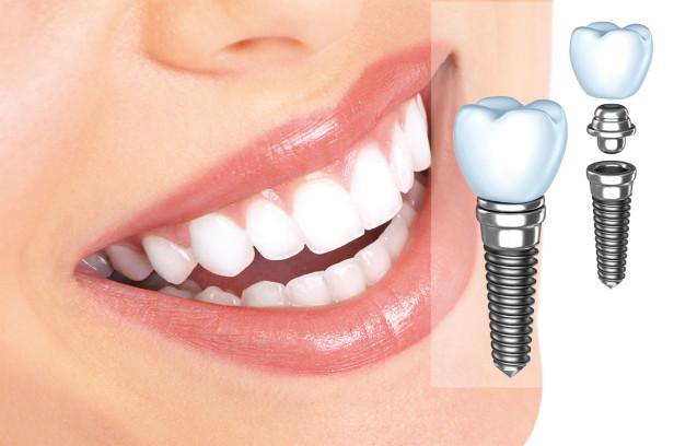 implant1-e1397163259194