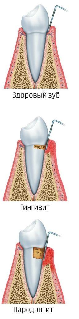 parodontit-1-kopiya